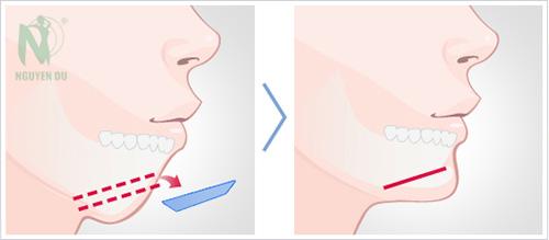 Phẫu thuật độn cằm Hàn Quốc là hình thức sử dụng chất liệu độn nhân tạo tạo hình dáng cằm