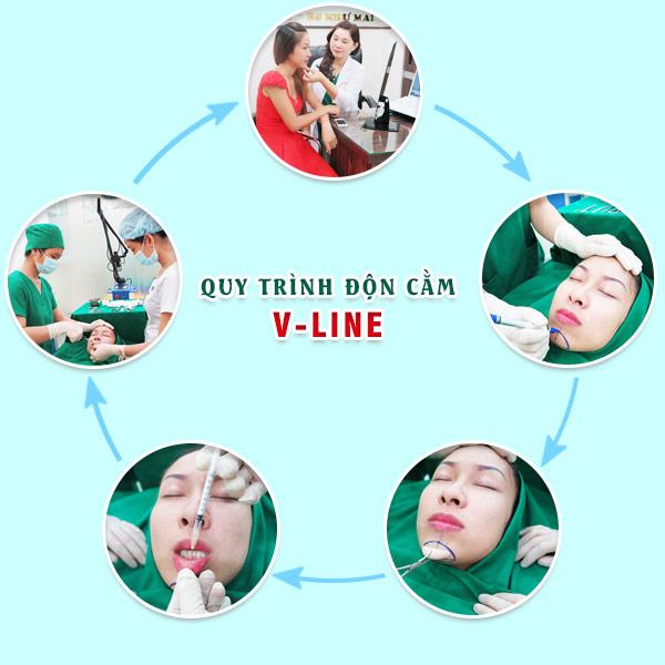 Quy trình độn cằm V-Line