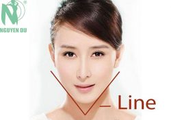 Giải pháp tạo mặt v-line không phẫu thuật